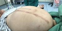 武汉男子肚子比孕妇还大 医生取出五十斤重巨型肿瘤 - 新浪湖北